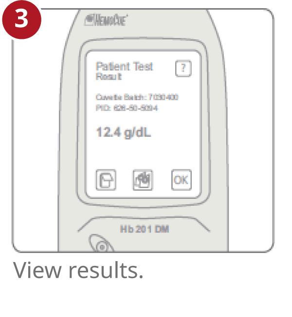 HemoCue Hb 201 DM results