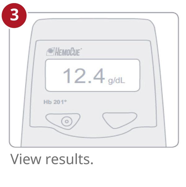 Hemoglobin test result