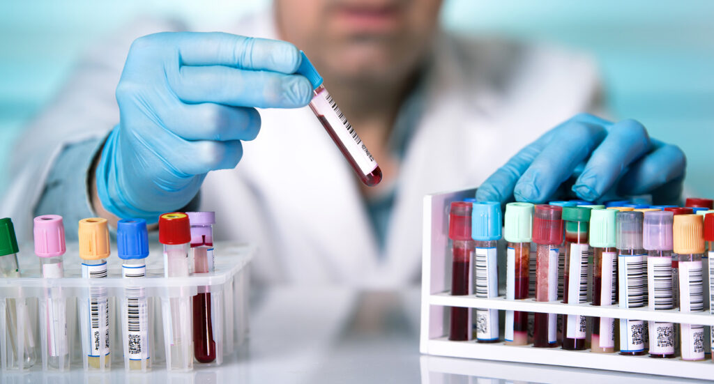 doctor holds a blood sample tube in his hand testing in the laboratory / hands of a technician holding blood tube sample in the lab